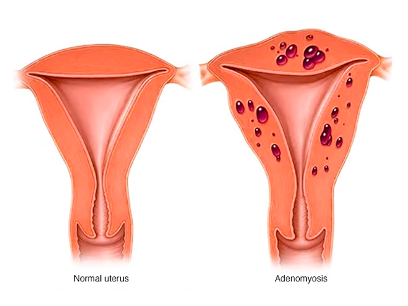 Adenomiosi uterina: cause, sintomi e trattamento.